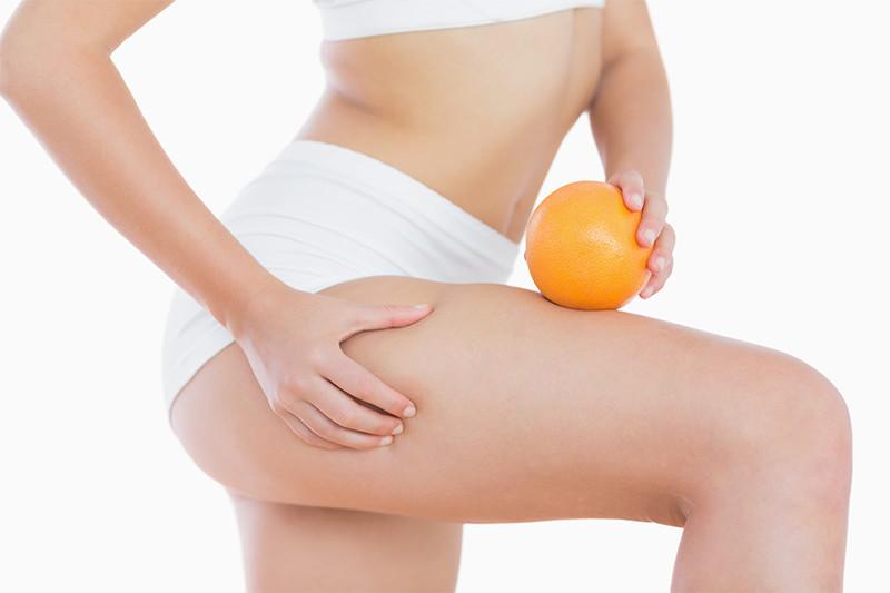A narancsbőr okai